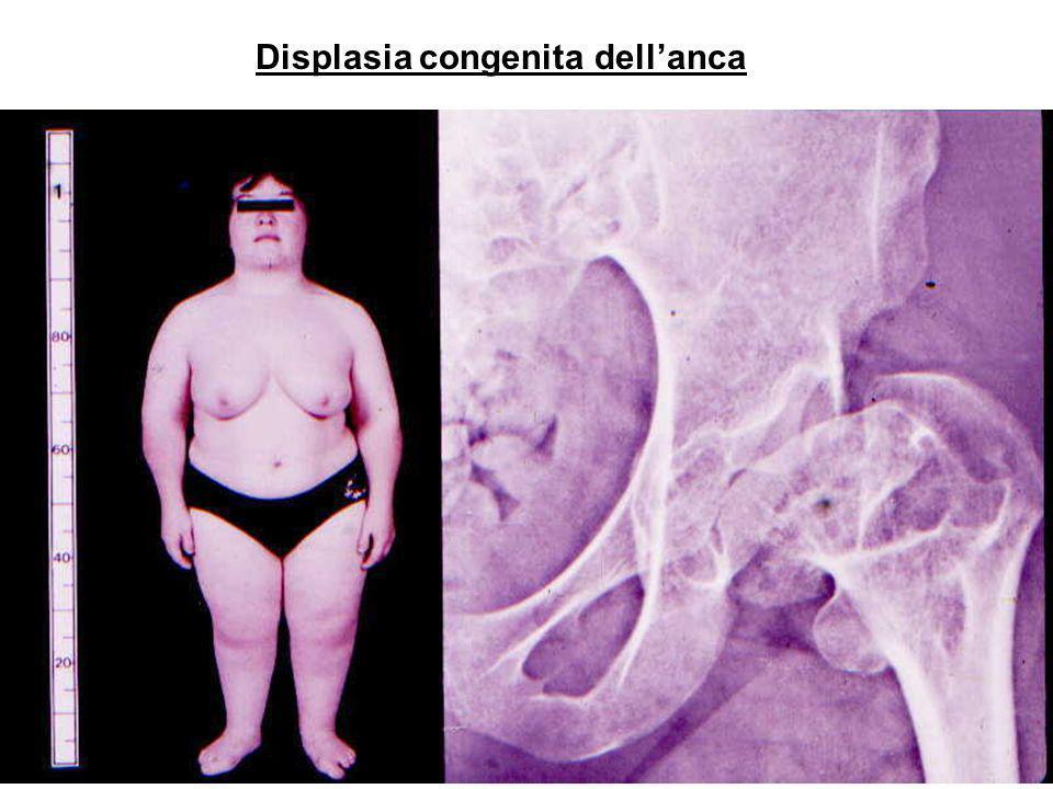 Displasia congenita dellanca