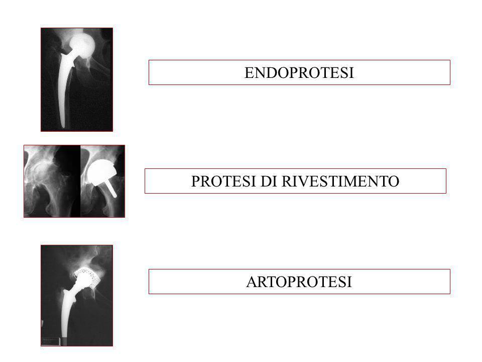 PROTESI DI RIVESTIMENTO ENDOPROTESI ARTOPROTESI