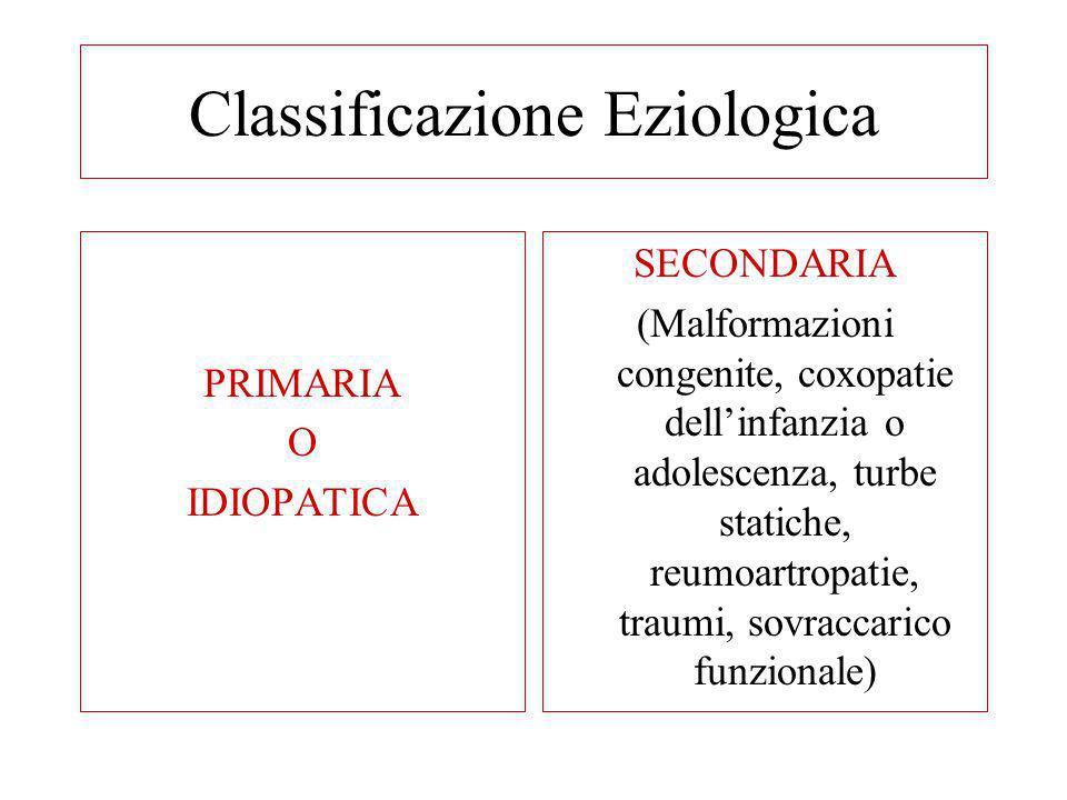 Classificazione Eziologica PRIMARIA O IDIOPATICA SECONDARIA (Malformazioni congenite, coxopatie dellinfanzia o adolescenza, turbe statiche, reumoartro