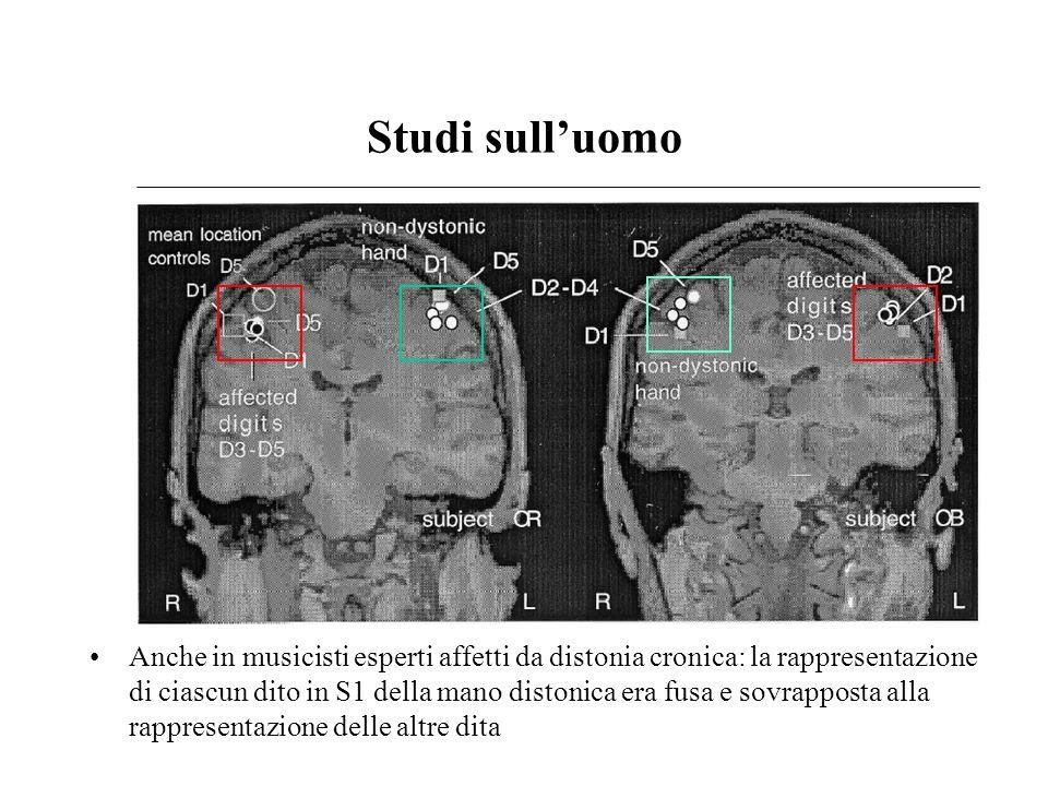 Studi sulluomo Anche in musicisti esperti affetti da distonia cronica: la rappresentazione di ciascun dito in S1 della mano distonica era fusa e sovra