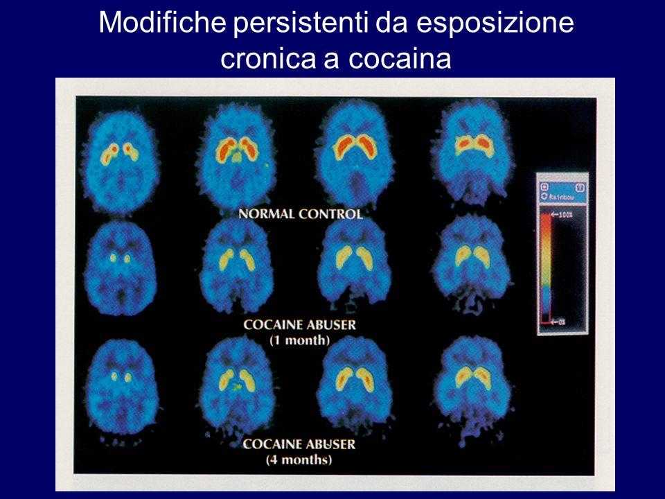 Modifiche persistenti da esposizione cronica a cocaina