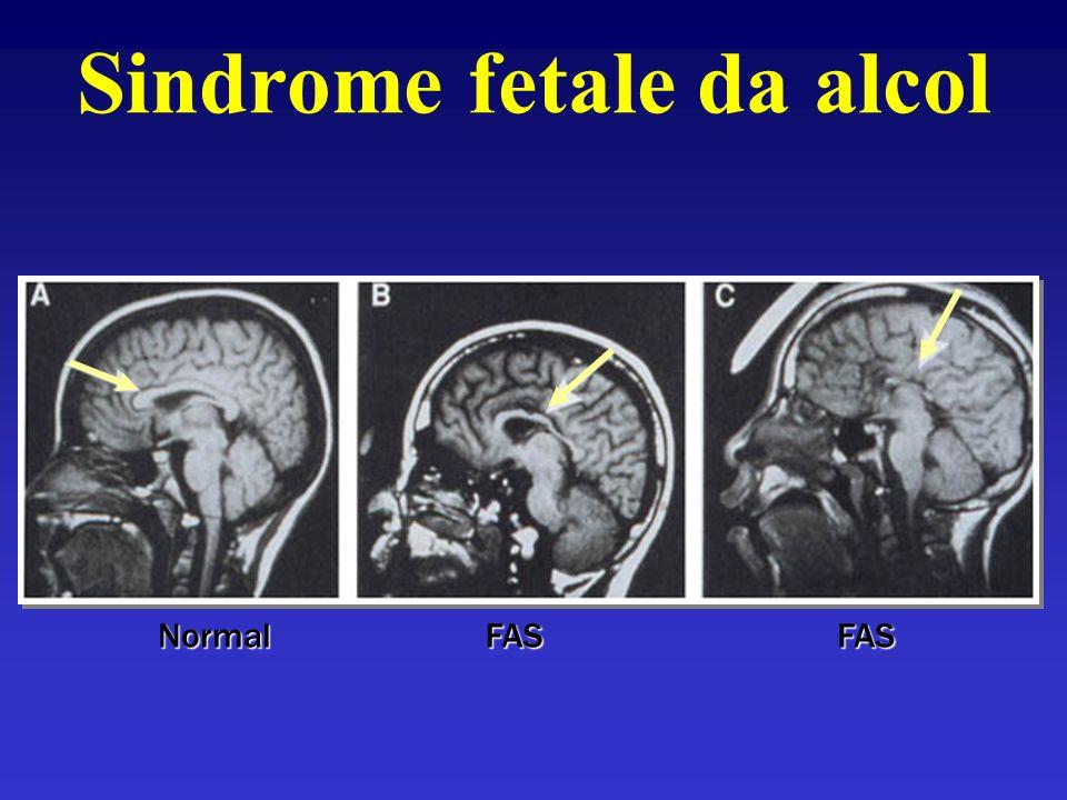 NormalFASFAS Sindrome fetale da alcol