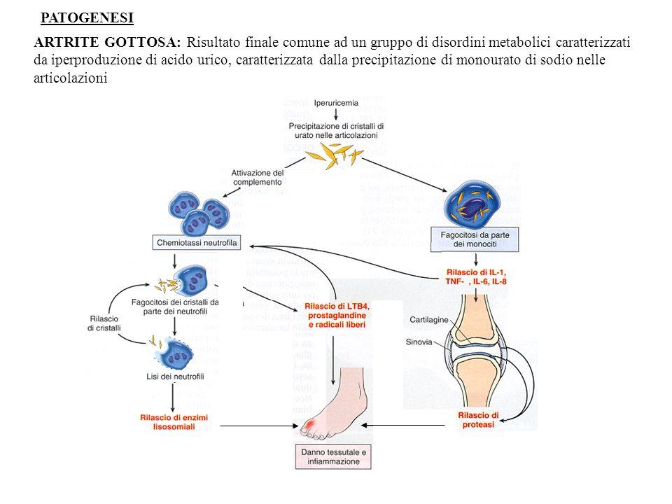 ARTRITE GOTTOSA: Risultato finale comune ad un gruppo di disordini metabolici caratterizzati da iperproduzione di acido urico, caratterizzata dalla precipitazione di monourato di sodio nelle articolazioni PATOGENESI