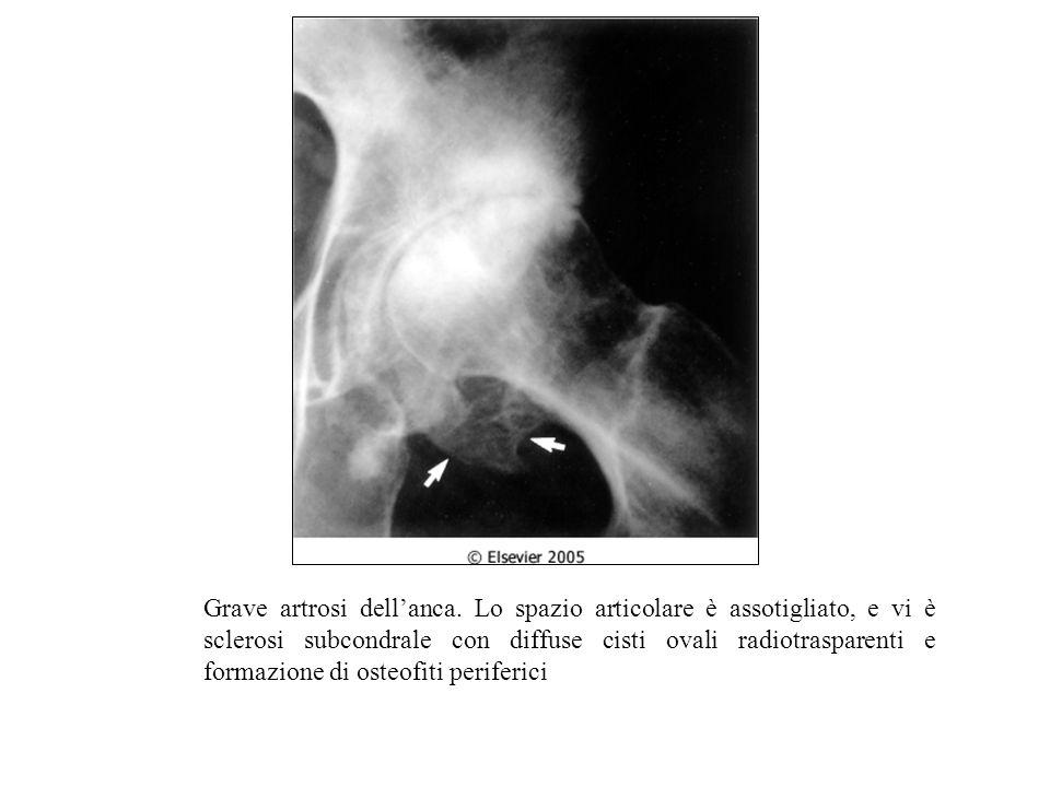 Grave artrosi dellanca.