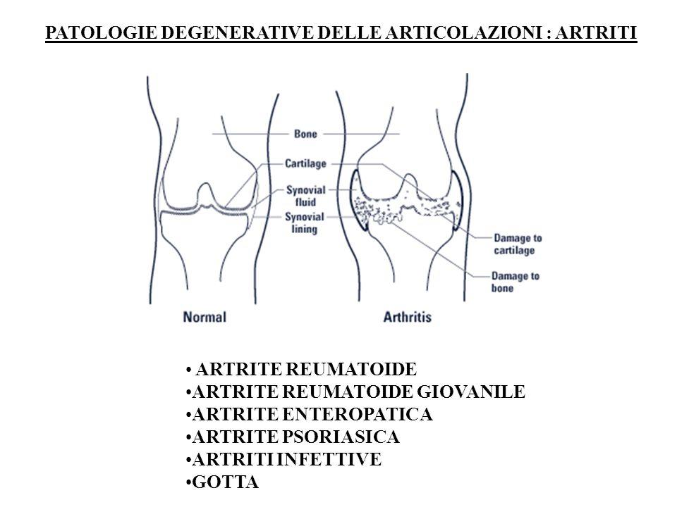 PATOLOGIE DEGENERATIVE DELLE ARTICOLAZIONI : ARTRITI ARTRITE REUMATOIDE ARTRITE REUMATOIDE GIOVANILE ARTRITE ENTEROPATICA ARTRITE PSORIASICA ARTRITI INFETTIVE GOTTA