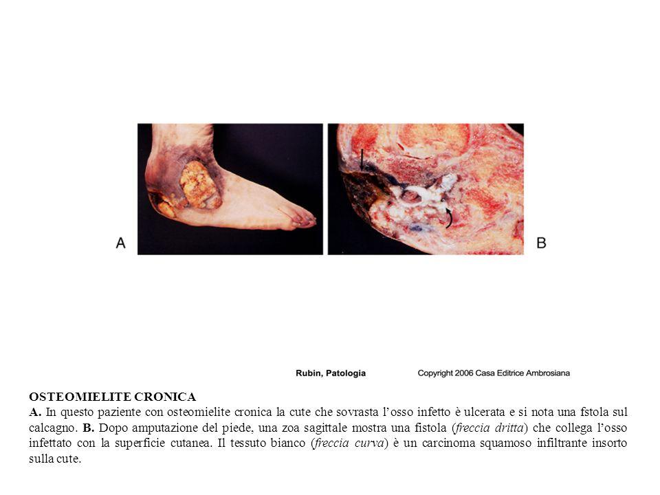 OSTEOMIELITE CRONICA A.