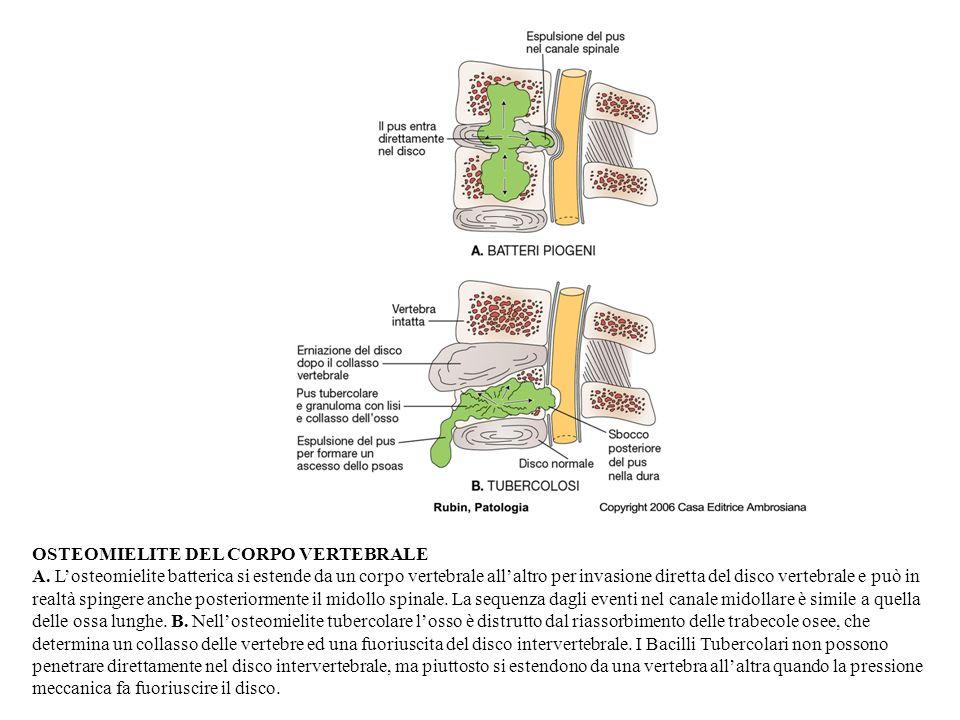 OSTEOMIELITE DEL CORPO VERTEBRALE A.