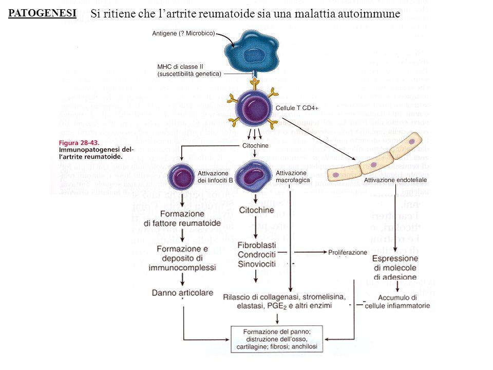 Si ritiene che lartrite reumatoide sia una malattia autoimmune PATOGENESI
