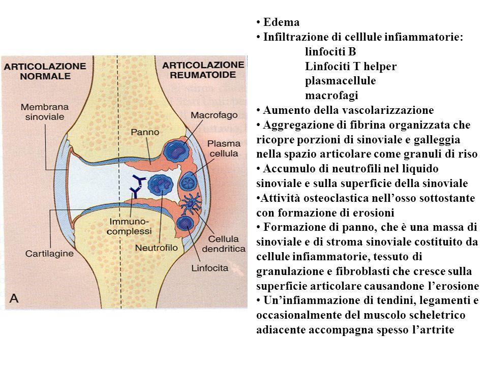 Edema Infiltrazione di celllule infiammatorie: linfociti B Linfociti T helper plasmacellule macrofagi Aumento della vascolarizzazione Aggregazione di fibrina organizzata che ricopre porzioni di sinoviale e galleggia nella spazio articolare come granuli di riso Accumulo di neutrofili nel liquido sinoviale e sulla superficie della sinoviale Attività osteoclastica nellosso sottostante con formazione di erosioni Formazione di panno, che è una massa di sinoviale e di stroma sinoviale costituito da cellule infiammatorie, tessuto di granulazione e fibroblasti che cresce sulla superficie articolare causandone lerosione Uninfiammazione di tendini, legamenti e occasionalmente del muscolo scheletrico adiacente accompagna spesso lartrite