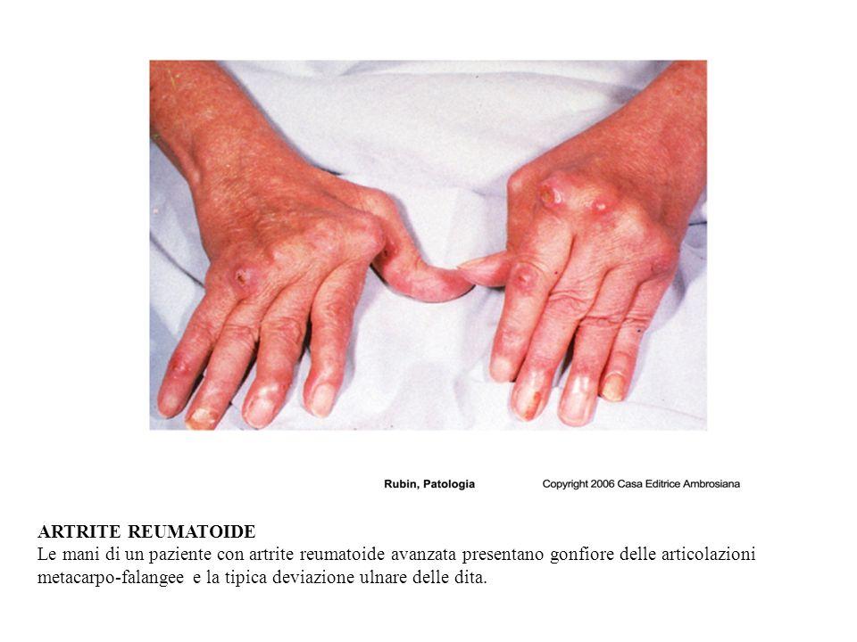 ARTRITE REUMATOIDE Le mani di un paziente con artrite reumatoide avanzata presentano gonfiore delle articolazioni metacarpo-falangee e la tipica deviazione ulnare delle dita.