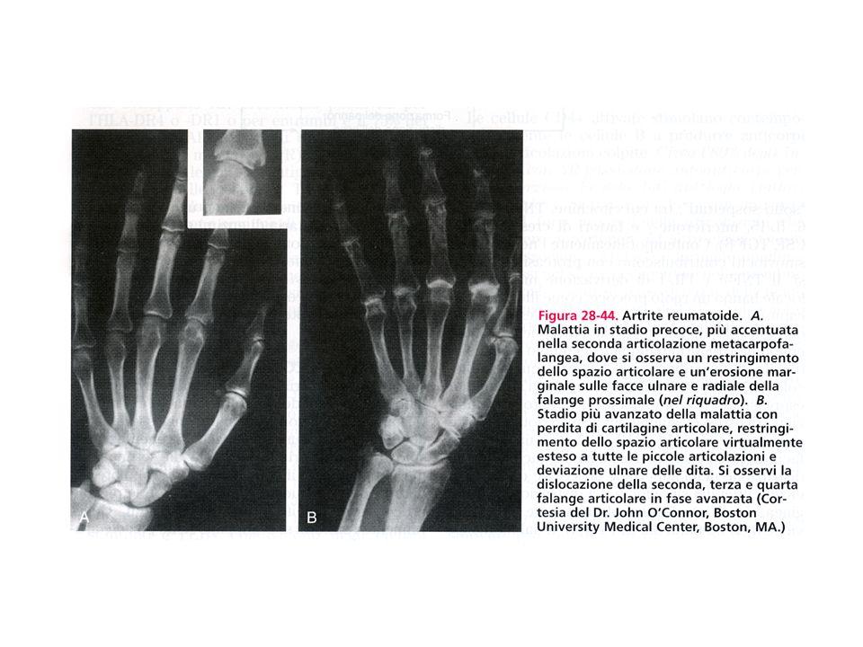 NODULO REUMATOIDE A.Un paziente con artrite reumatoide mostra un nodulo di un dito B.Laspetto istologico di un nodulo reumatoide presenta unarea centrale di necrosi circondata da macrofagi e palizzata da un infiltrato infiammatorio cronico.