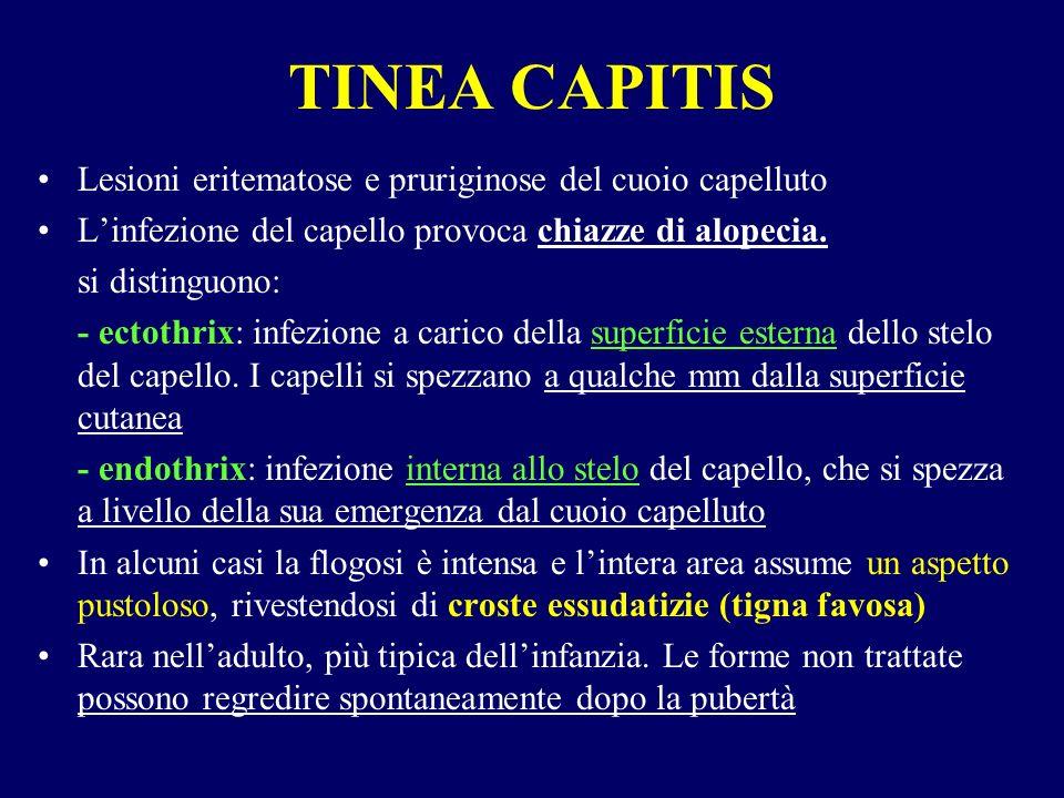 TINEA CAPITIS Lesioni eritematose e pruriginose del cuoio capelluto Linfezione del capello provoca chiazze di alopecia. si distinguono: - ectothrix: i