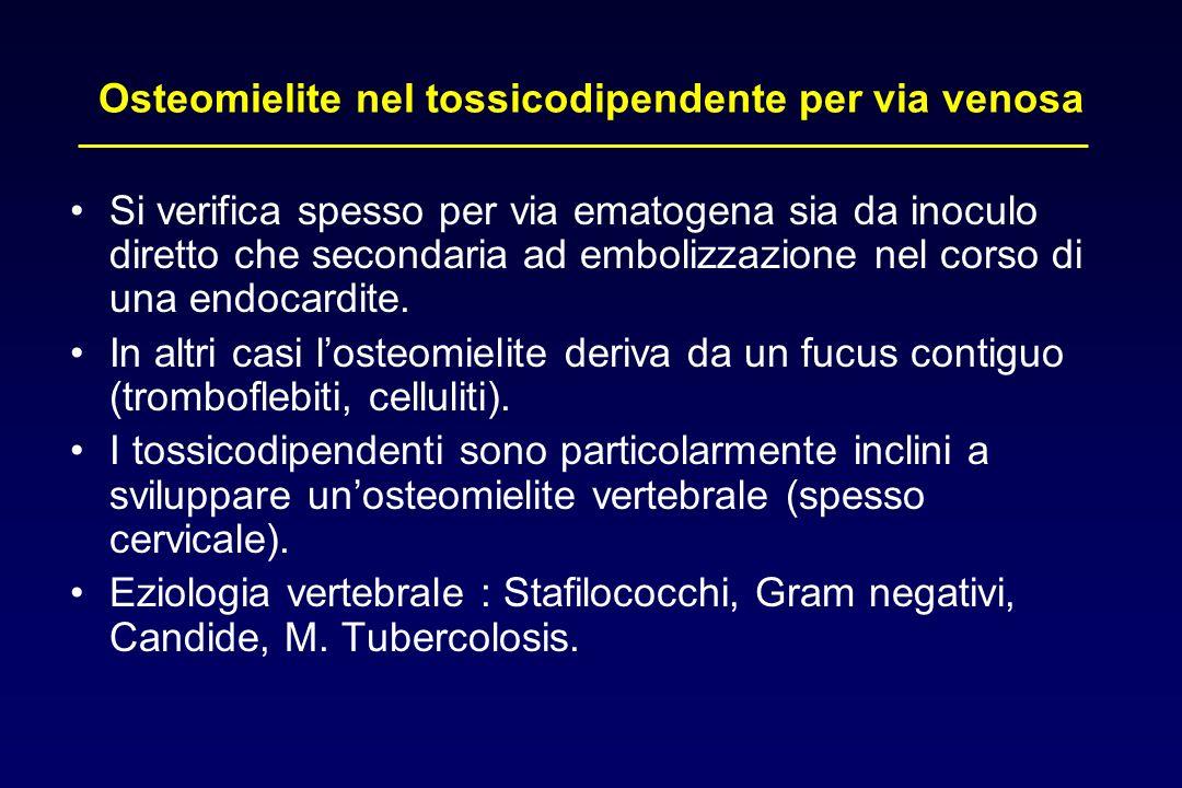 Osteomielite nel tossicodipendente per via venosa Si verifica spesso per via ematogena sia da inoculo diretto che secondaria ad embolizzazione nel cor
