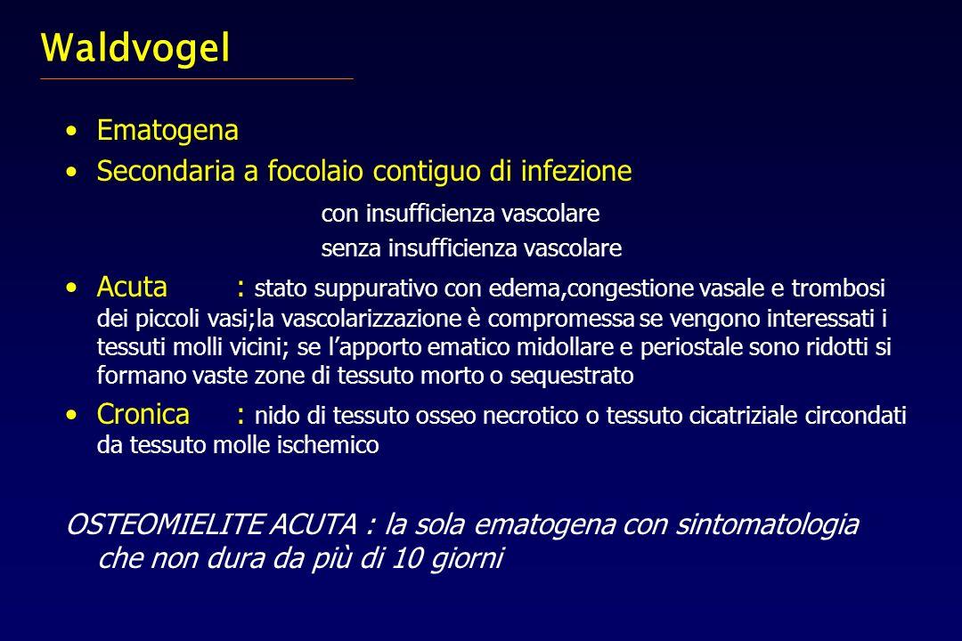 Waldvogel Ematogena Secondaria a focolaio contiguo di infezione con insufficienza vascolare senza insufficienza vascolare Acuta: stato suppurativo con