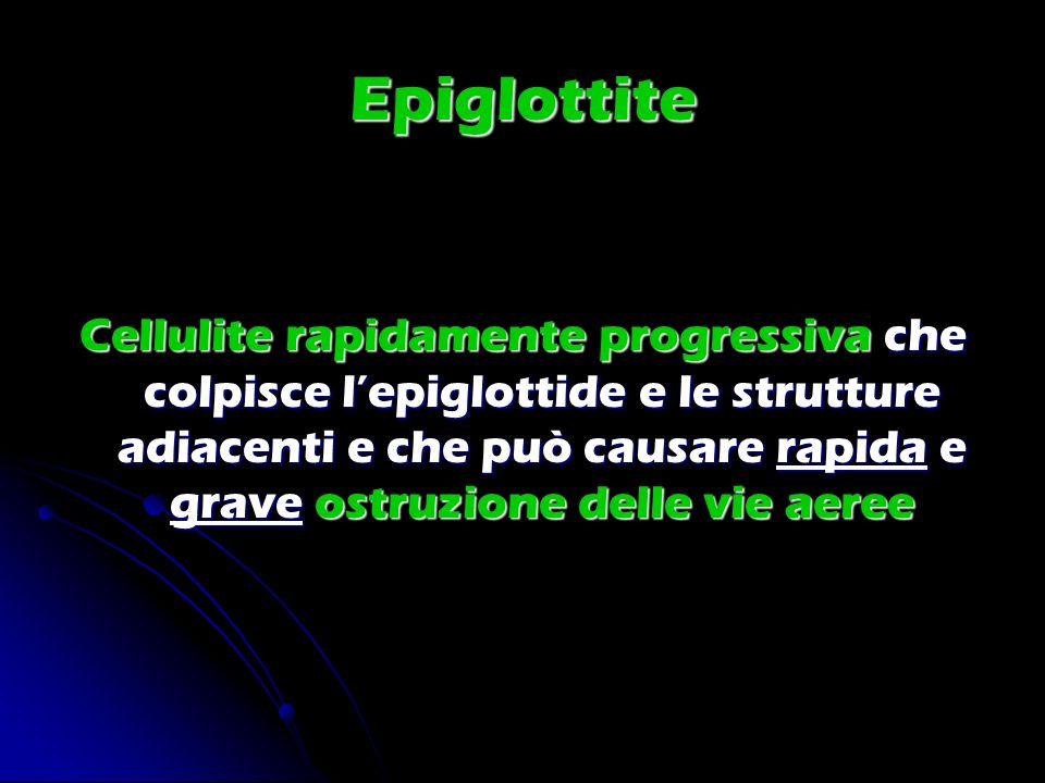 Epiglottite Cellulite rapidamente progressiva che colpisce lepiglottide e le strutture adiacenti e che può causare rapida e grave ostruzione delle vie