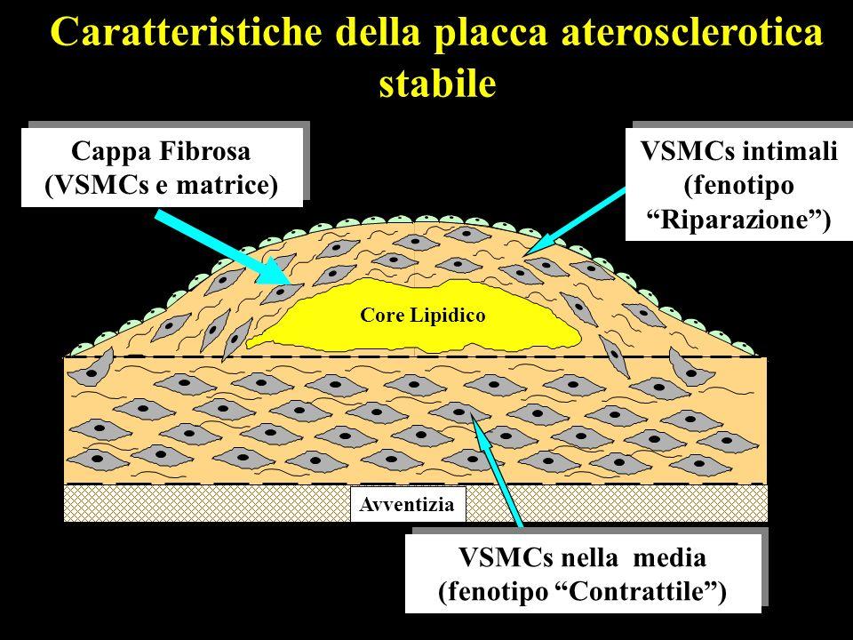 Caratteristiche della placca aterosclerotica stabile Cappa Fibrosa (VSMCs e matrice) Cappa Fibrosa (VSMCs e matrice) Core Lipidico Avventizia VSMCs in
