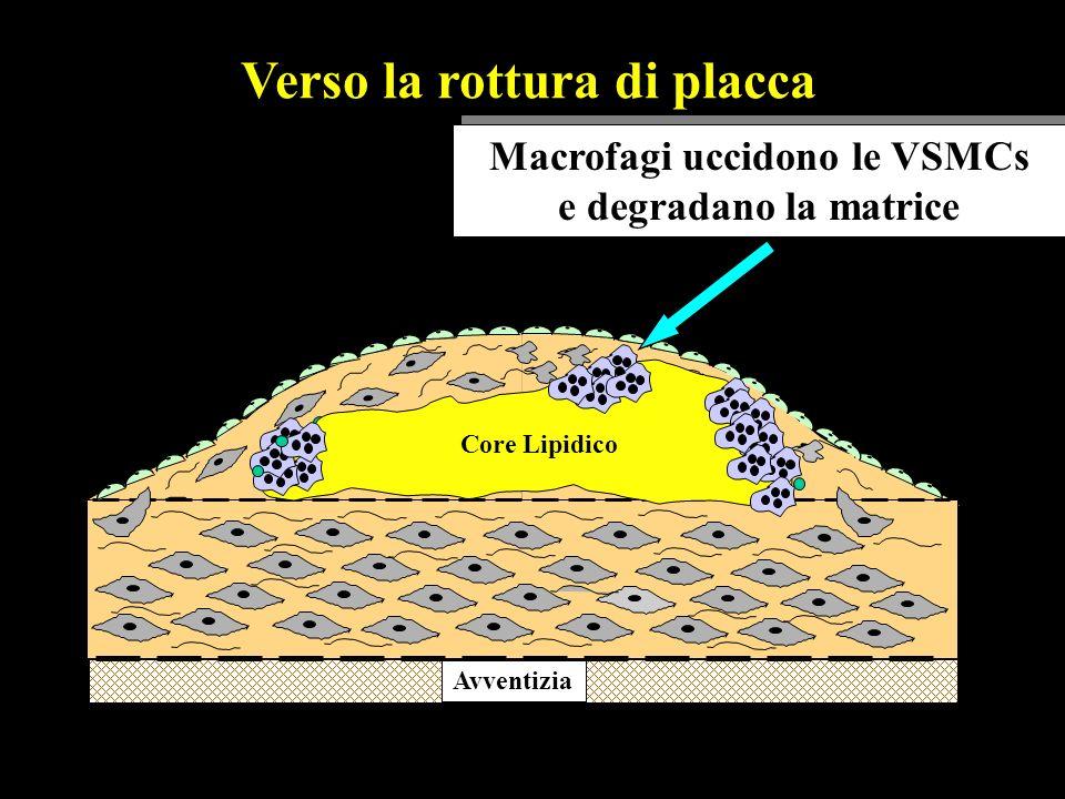 Avventizia lipid core Core Lipidico Verso la rottura di placca Macrofagi uccidono le VSMCs e degradano la matrice