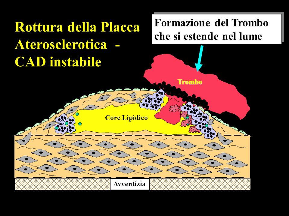 Avventizia Trombo Rottura della Placca Aterosclerotica - CAD instabile Formazione del Trombo che si estende nel lume