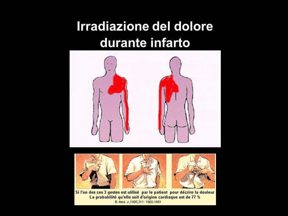 Irradiazione del dolore durante infarto