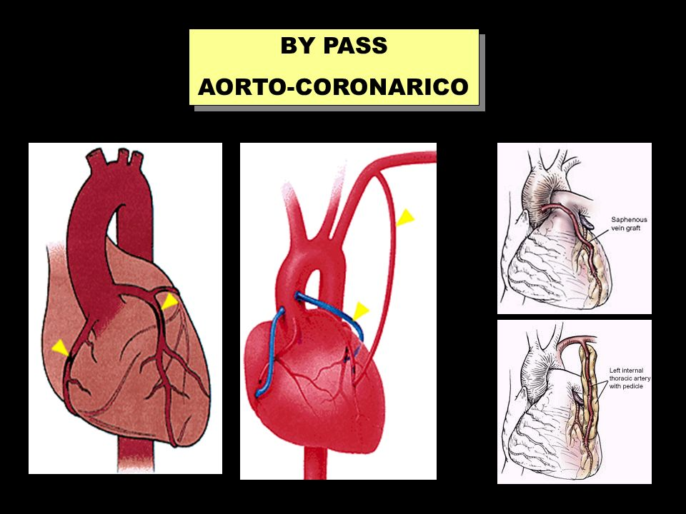 BY PASS AORTO-CORONARICO BY PASS AORTO-CORONARICO
