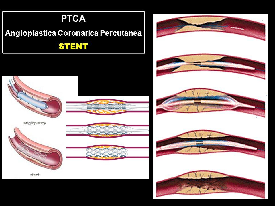PTCA Angioplastica Coronarica Percutanea STENT