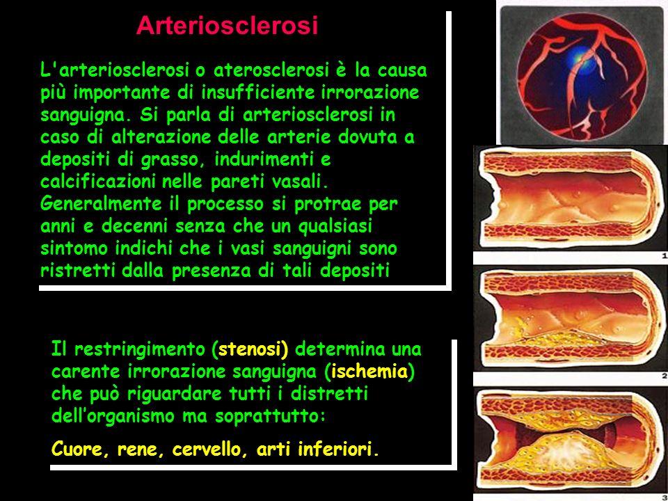 Arteriosclerosi L'arteriosclerosi o aterosclerosi è la causa più importante di insufficiente irrorazione sanguigna. Si parla di arteriosclerosi in cas