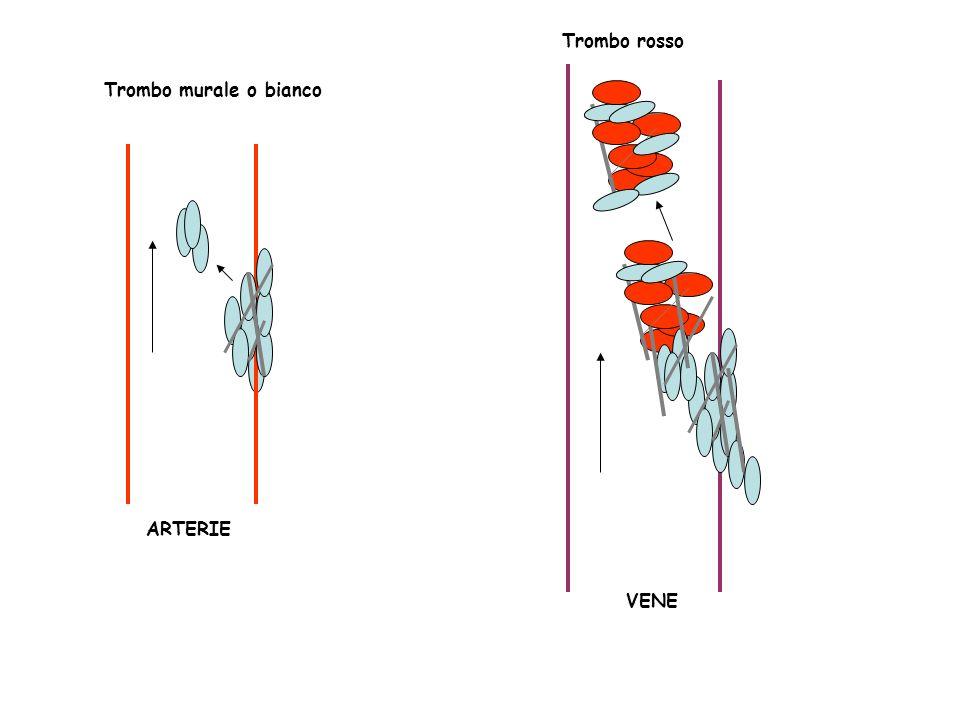 Trombo murale o bianco ARTERIE Trombo rosso VENE