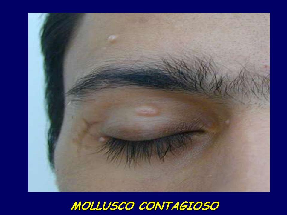 MOLLUSCO CONTAGIOSO MOLLUSCO CONTAGIOSO