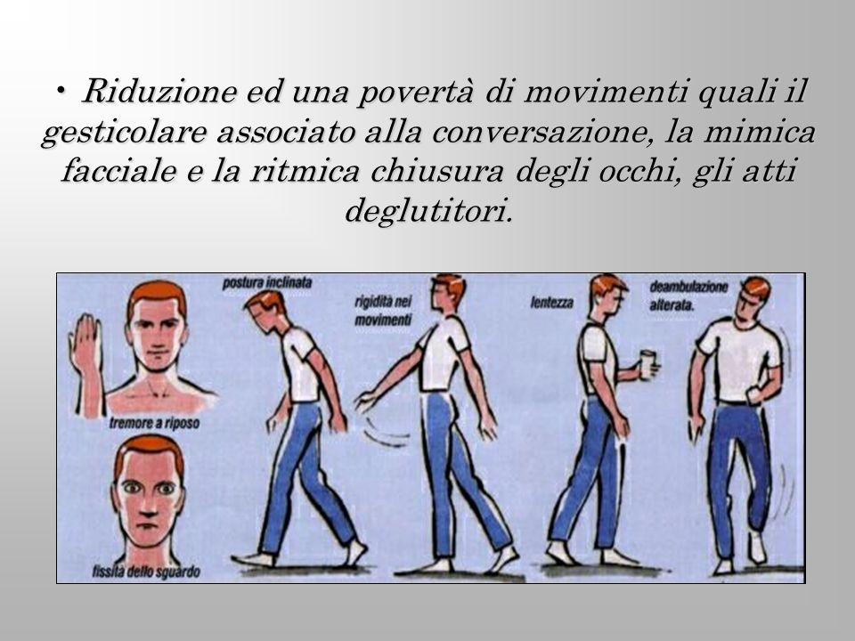 Riduzione ed una povertà di movimenti quali il gesticolare associato alla conversazione, la mimica facciale e la ritmica chiusura degli occhi, gli att