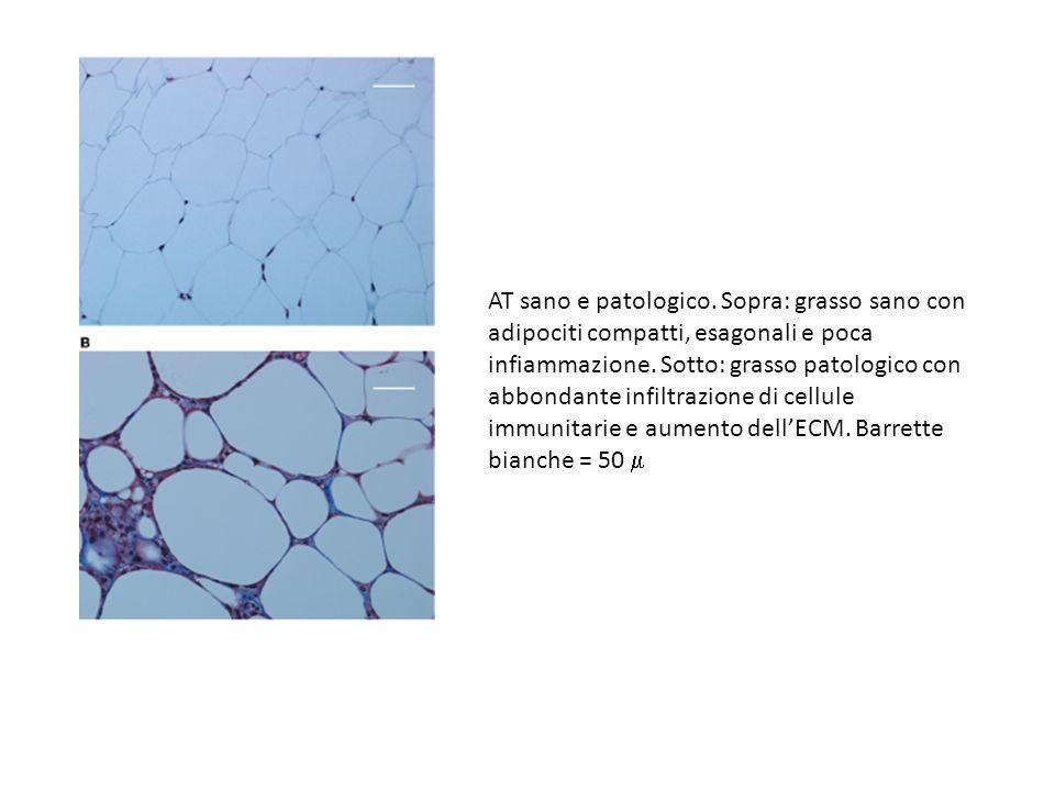 AT sano e patologico.Sopra: grasso sano con adipociti compatti, esagonali e poca infiammazione.