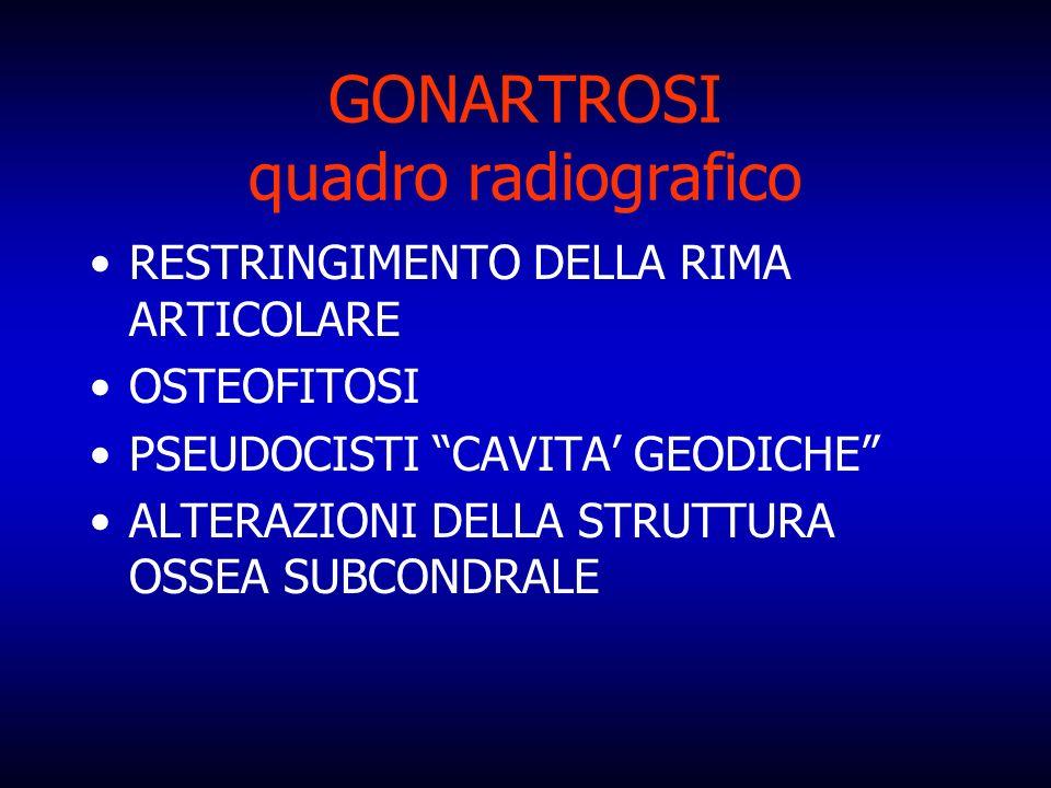 GONARTROSI quadro radiografico RESTRINGIMENTO DELLA RIMA ARTICOLARE OSTEOFITOSI PSEUDOCISTI CAVITA GEODICHE ALTERAZIONI DELLA STRUTTURA OSSEA SUBCONDR