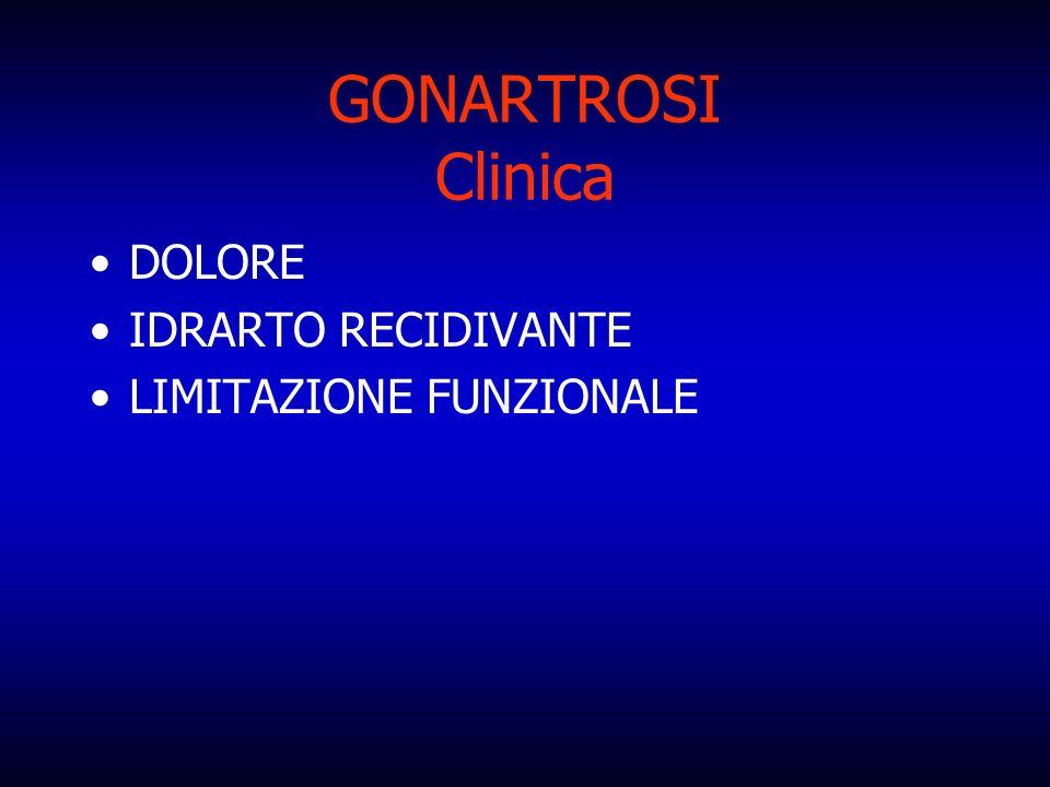 GONARTROSI Clinica DOLORE IDRARTO RECIDIVANTE LIMITAZIONE FUNZIONALE