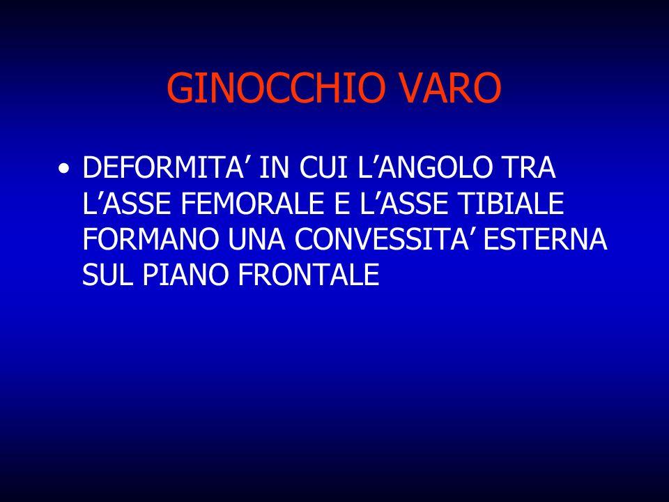 GINOCCHIO VARO DEFORMITA IN CUI LANGOLO TRA LASSE FEMORALE E LASSE TIBIALE FORMANO UNA CONVESSITA ESTERNA SUL PIANO FRONTALE
