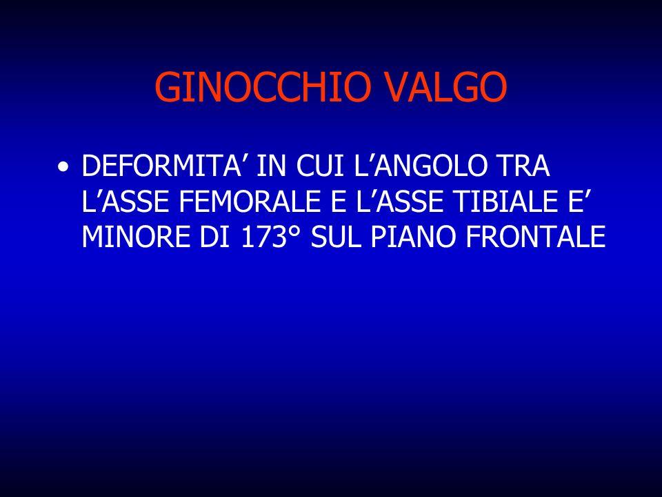 GINOCCHIO VALGO DEFORMITA IN CUI LANGOLO TRA LASSE FEMORALE E LASSE TIBIALE E MINORE DI 173° SUL PIANO FRONTALE
