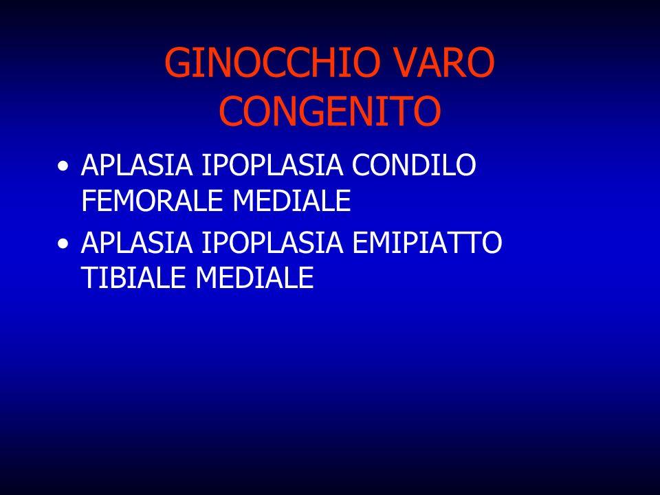 GINOCCHIO VARO CONGENITO APLASIA IPOPLASIA CONDILO FEMORALE MEDIALE APLASIA IPOPLASIA EMIPIATTO TIBIALE MEDIALE