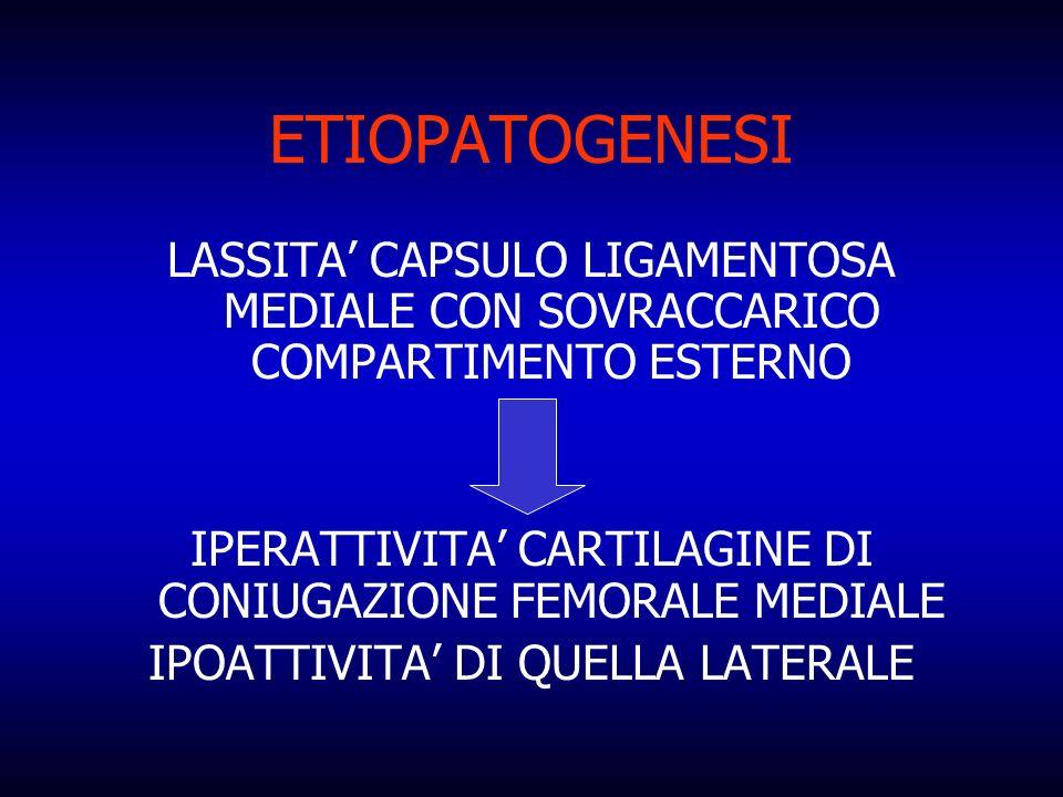 ETIOPATOGENESI LASSITA CAPSULO LIGAMENTOSA MEDIALE CON SOVRACCARICO COMPARTIMENTO ESTERNO IPERATTIVITA CARTILAGINE DI CONIUGAZIONE FEMORALE MEDIALE IP