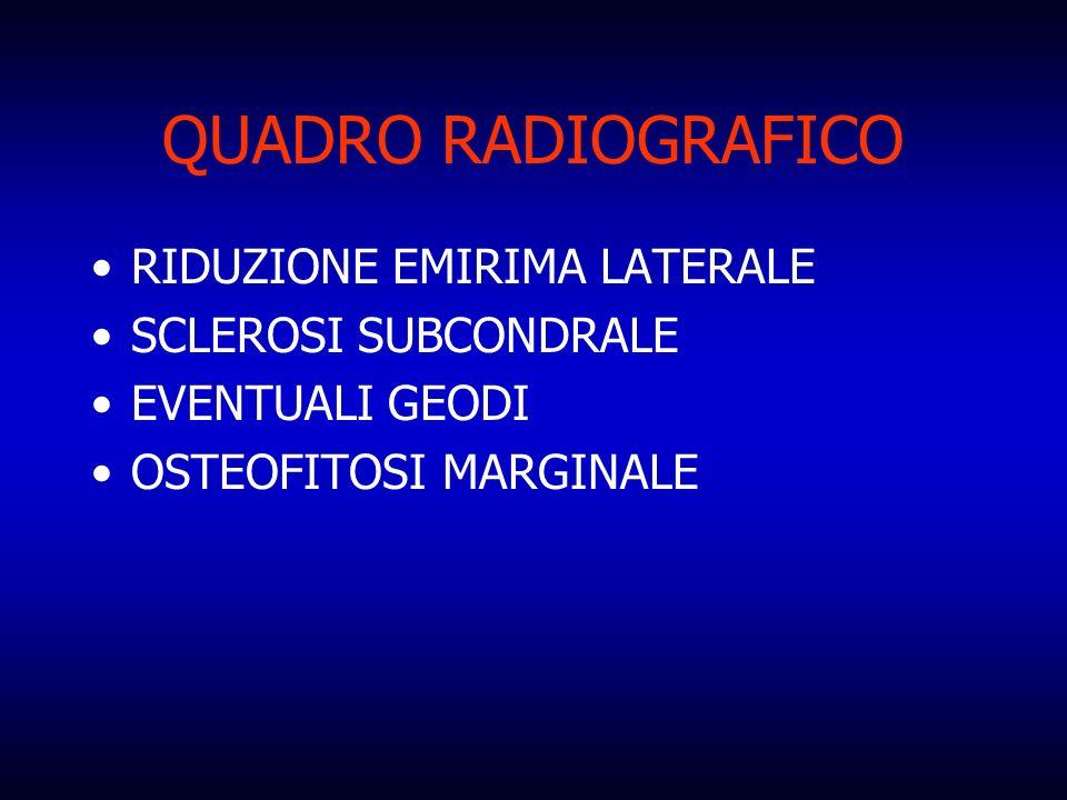 QUADRO RADIOGRAFICO RIDUZIONE EMIRIMA LATERALE SCLEROSI SUBCONDRALE EVENTUALI GEODI OSTEOFITOSI MARGINALE