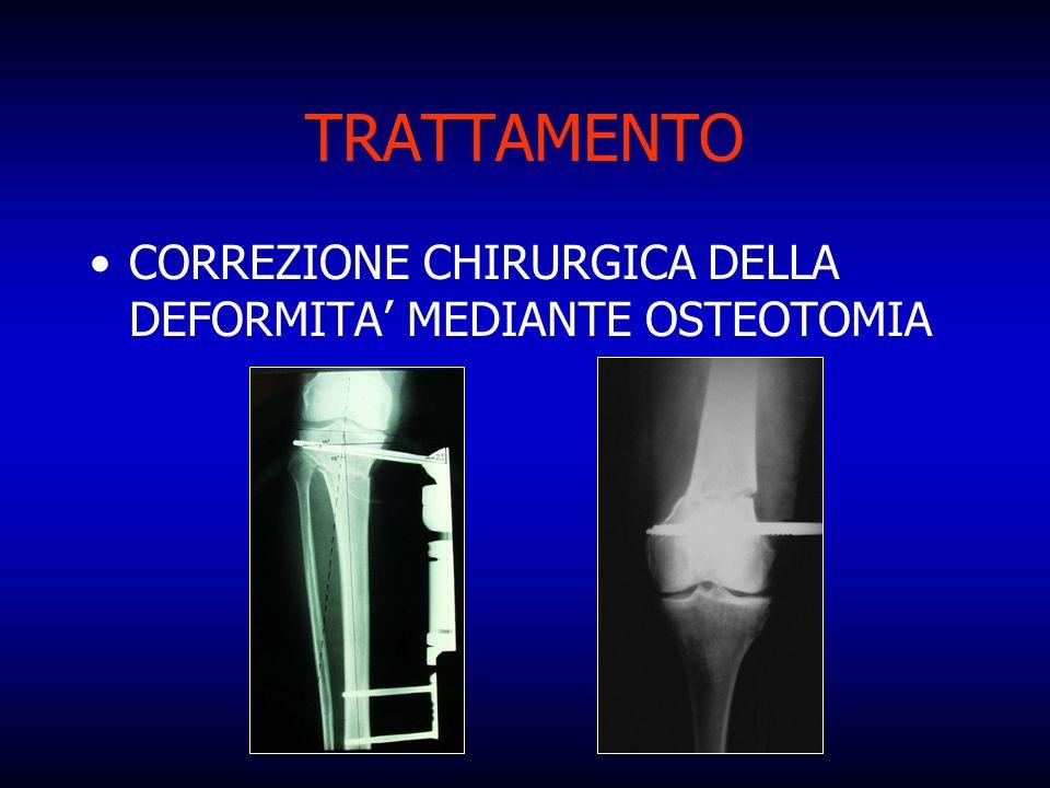 TRATTAMENTO CORREZIONE CHIRURGICA DELLA DEFORMITA MEDIANTE OSTEOTOMIA