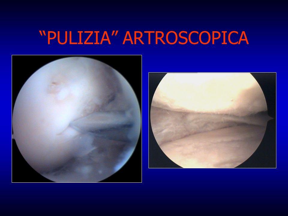 PULIZIA ARTROSCOPICA