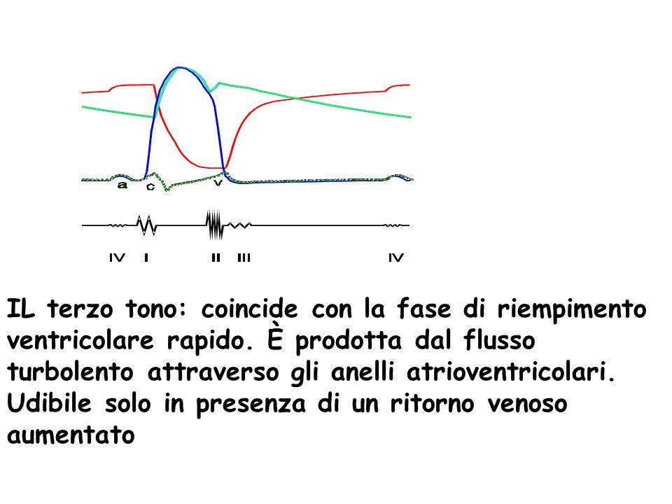 IL terzo tono: coincide con la fase di riempimento ventricolare rapido. È prodotta dal flusso turbolento attraverso gli anelli atrioventricolari. Udib