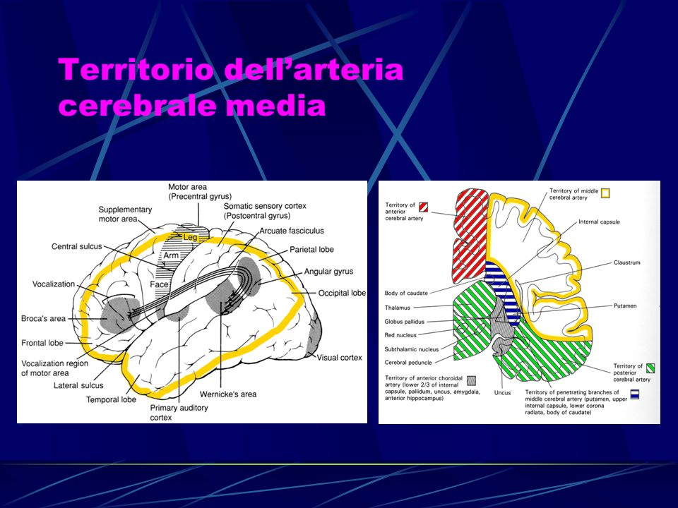 Territorio dellarteria cerebrale media