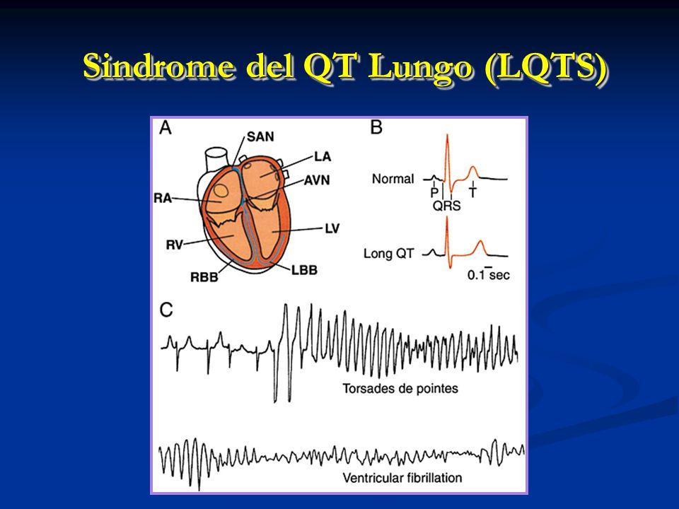 Sindrome del QT Lungo (LQTS)