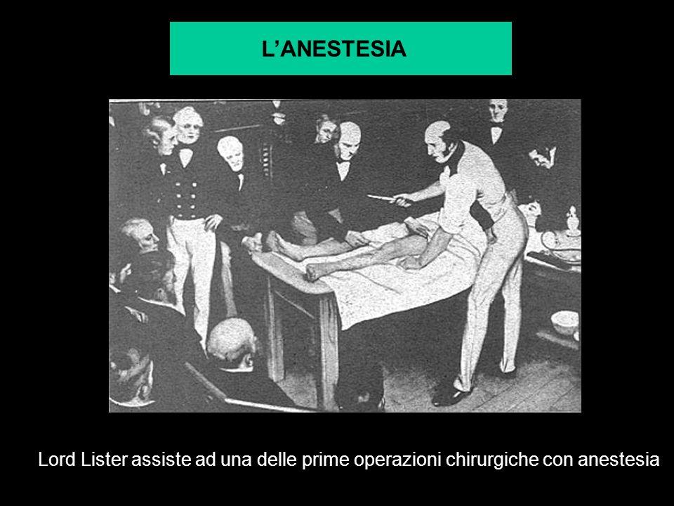 LANESTESIA Lord Lister assiste ad una delle prime operazioni chirurgiche con anestesia