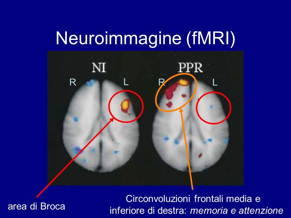 Neuroimmagine (fMRI) area di Broca R L RL Circonvoluzioni frontali media e inferiore di destra: memoria e attenzione