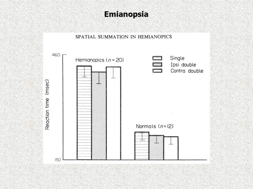 Emianopsia