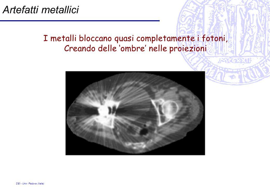 DEI - Univ. Padova (Italia) Artefatti metallici I metalli bloccano quasi completamente i fotoni, Creando delle ombre nelle proiezioni