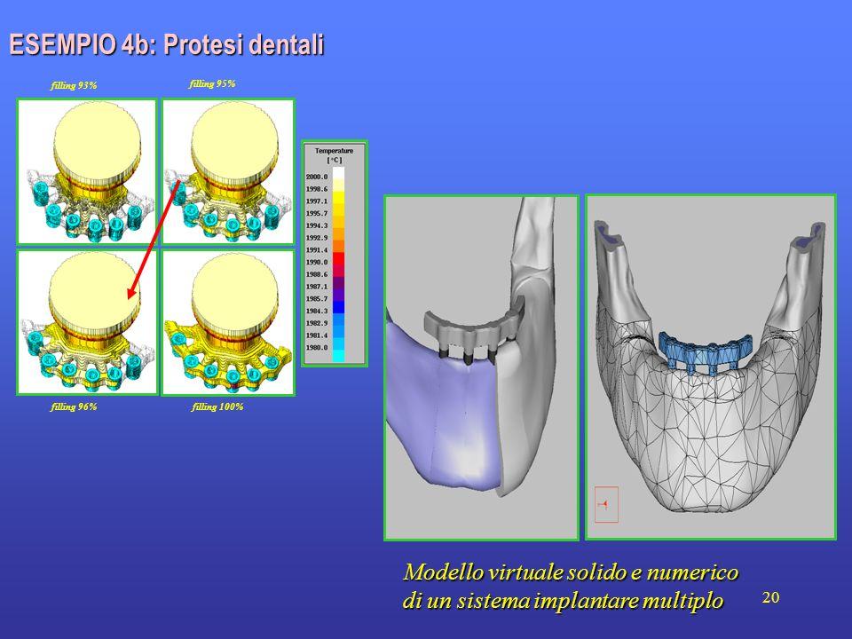 20 ESEMPIO 4b: Protesi dentali filling 93% filling 100% filling 96% filling 95% Modello virtuale solido e numerico di un sistema implantare multiplo