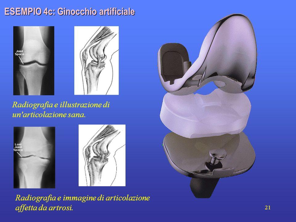 21 Radiografia e illustrazione di un'articolazione sana. Radiografia e immagine di articolazione affetta da artrosi. ESEMPIO 4c: Ginocchio artificiale