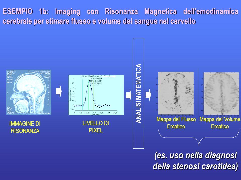 7 ESEMPIO 1b: Imaging con Risonanza Magnetica dellemodinamica cerebrale per stimare flusso e volume del sangue nel cervello ANALISI MATEMATICA Mappa d
