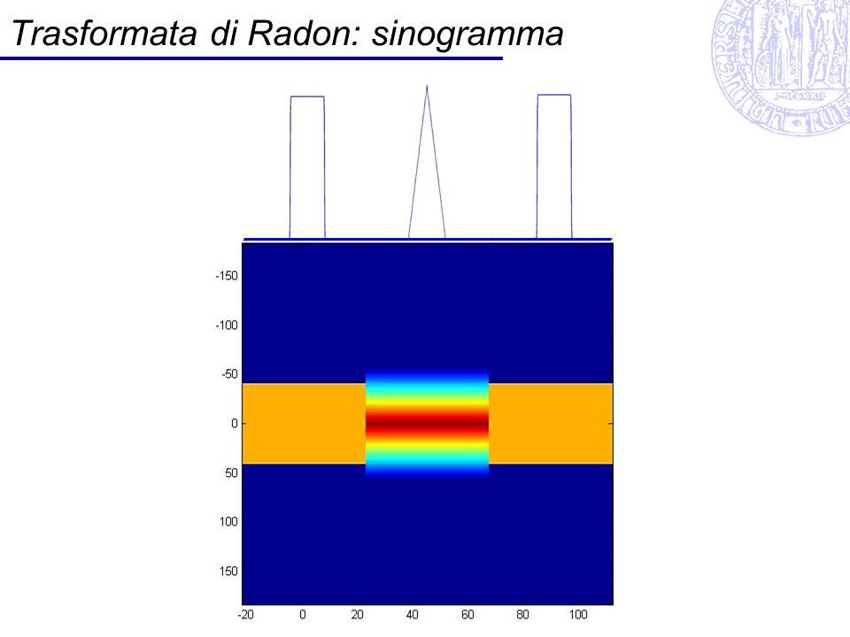 Trasformata Radon RT θ x sinogramma Esempi: